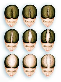Female Hair Loss Image
